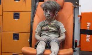 Bukan Boneka, Bocah Suriah di Dalam Ambulans Menyedihkan