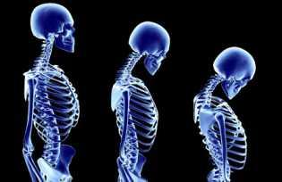 Pil KB Mengandung Estrogen Cegah Osteoporosis