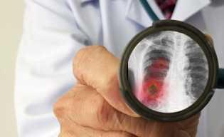 WHO Tetapkan Status Darurat Internasional, Masyarakat Waspada Hadapi Virus Korona