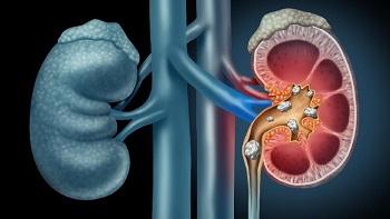 8 Gejala Penyakit Batu Ginjal
